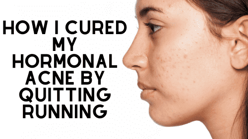 hormonal acne and running